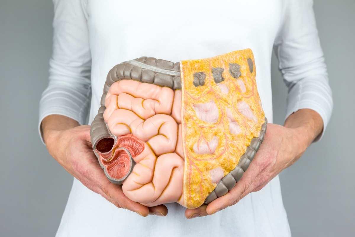 Mikrobiom jelitowy i stwardnienie rozsiane