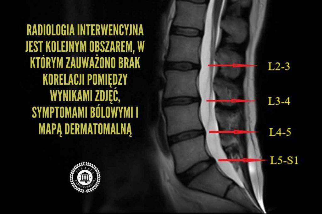 ból korzeni nerwowych