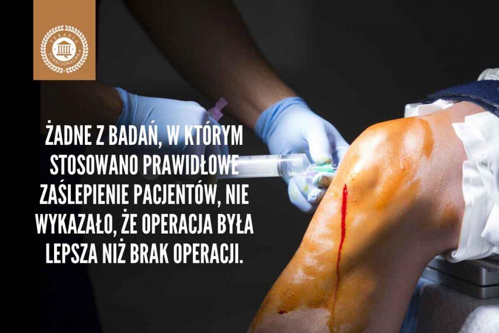 operacja nie lepsza niż brak operacji